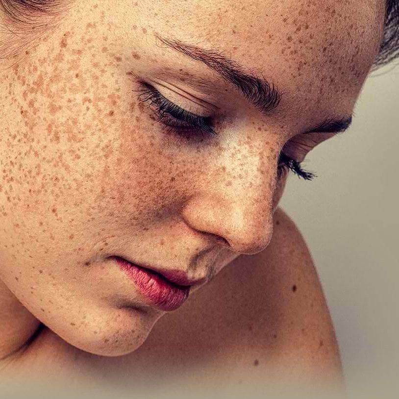 Skin-Pigmentation-Brisbane-1-1