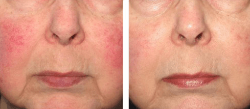 rosacea acne treatment
