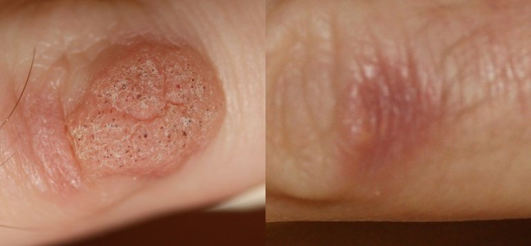 warts removal